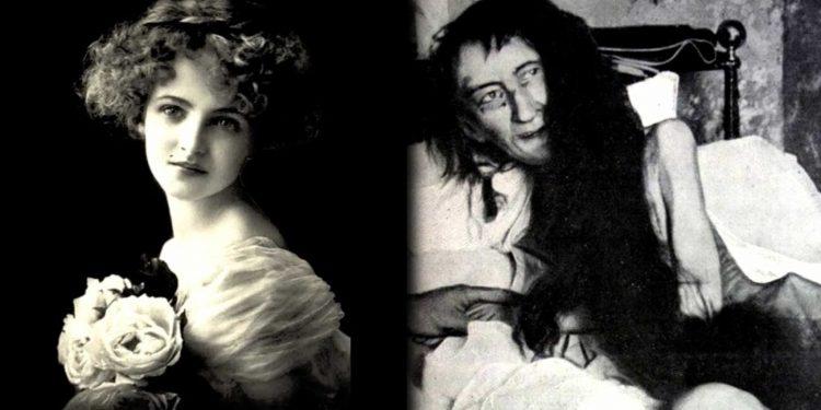 Blanche Monnier: 25 Yıl Çatı Katında Hapsedilen Kız!