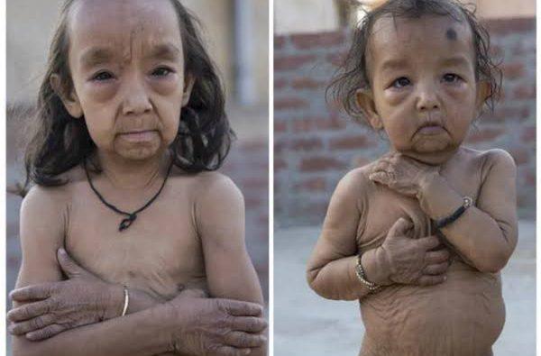 Yaşlılık Hastası (Progeria) Benjamin Button Kardeşler!
