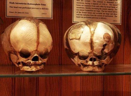 Lanetli Eşyalardan Seri Katillere En Ürpertici 6 Müze!